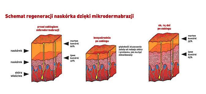 mikrodermabrazja_schamat działania zabiegu