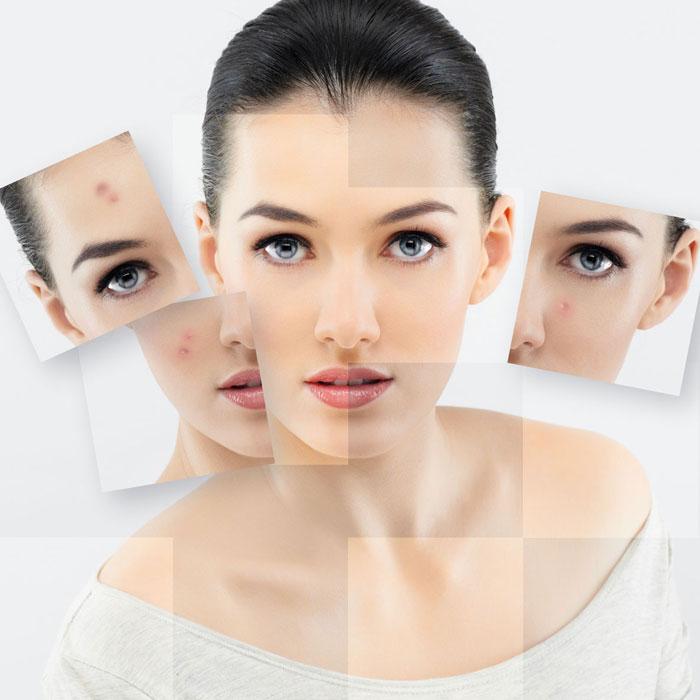 oczyszczanie-twarzy-2